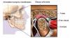 Les disfonctions - craquements - douleurs de la mâchoire - lourdes conséquences sur la qualité de vie