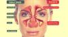 Sinusite chronique et ostéopathie